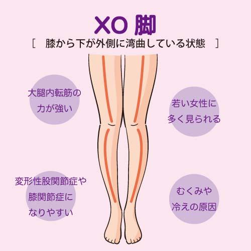 膝がくっつくXO脚