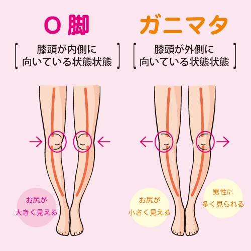 O脚とガニマタの見分け方のポイントは、 膝が内側と外側のどちらを向いているのかによって決まります。
